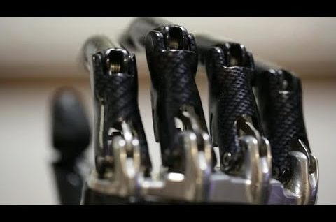 Moja bioniczna ręka